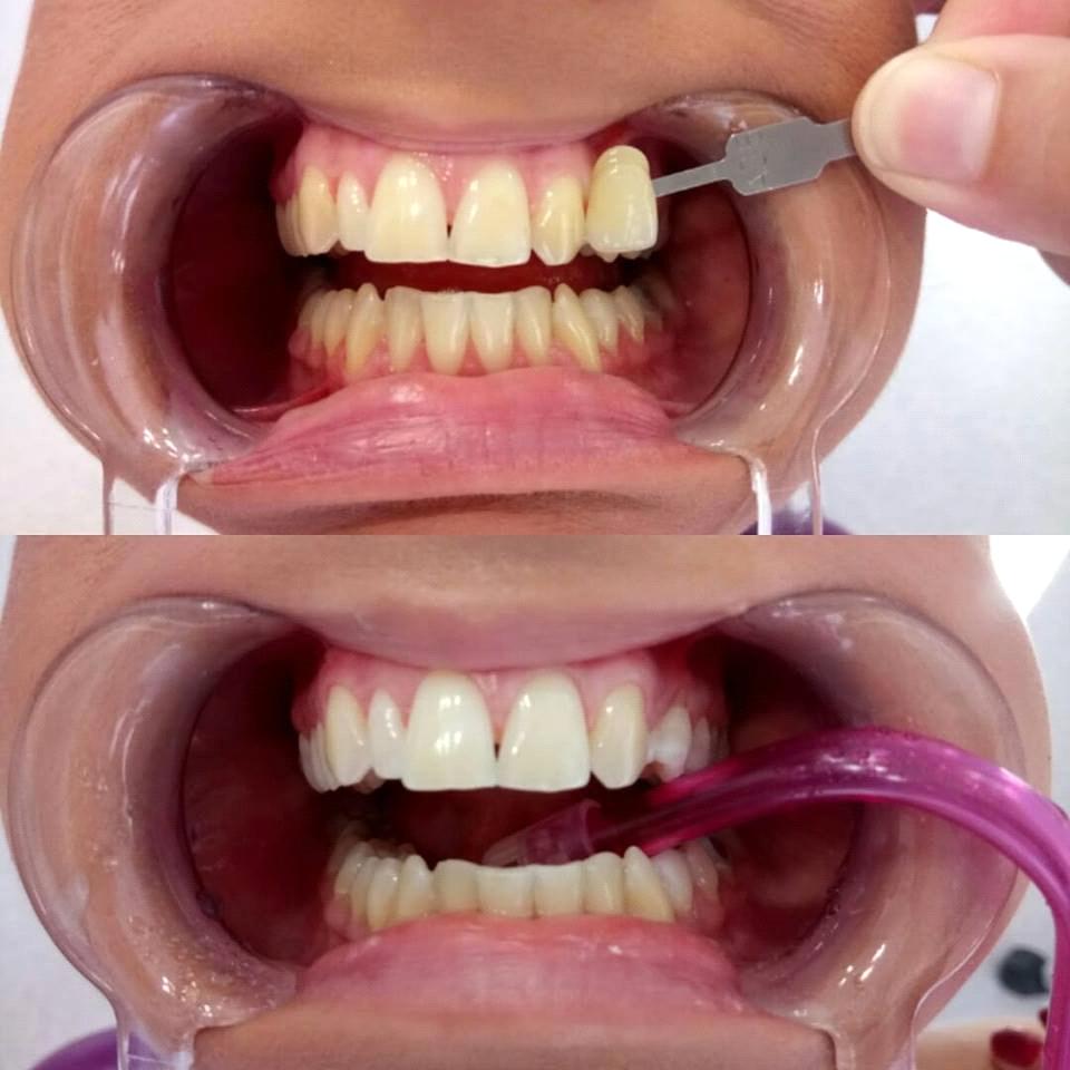 Гел за избјељивање зуба цијена